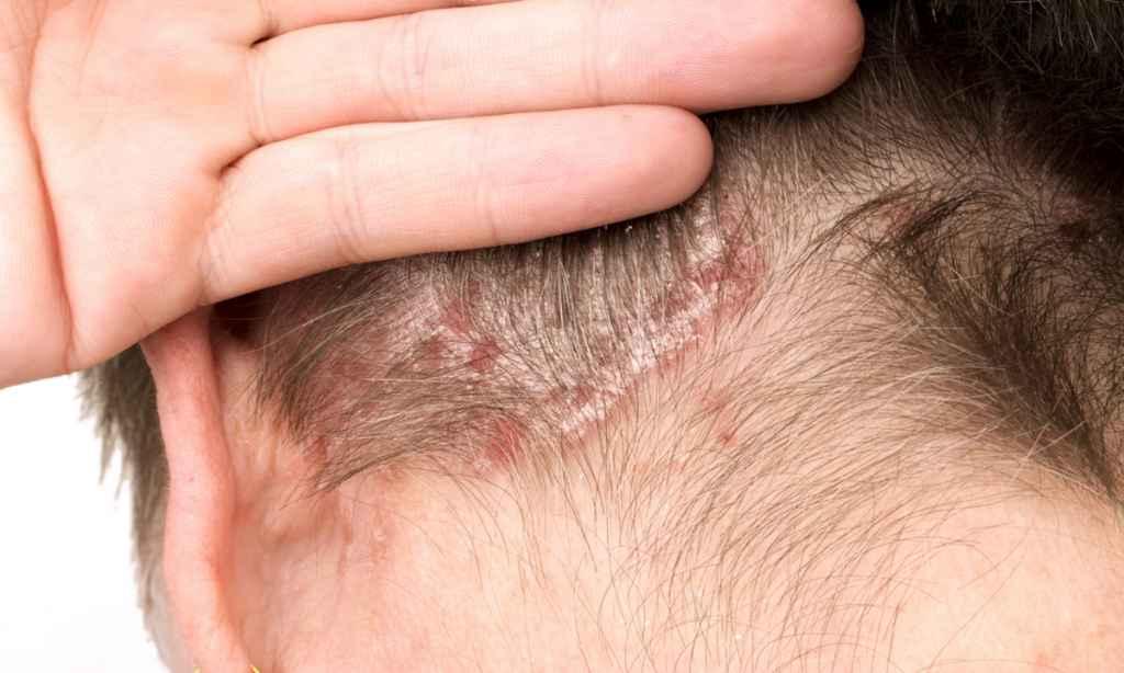 Psoriazisul scalpului